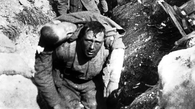 Casualties mount on the Western Front, time and place uncertain.