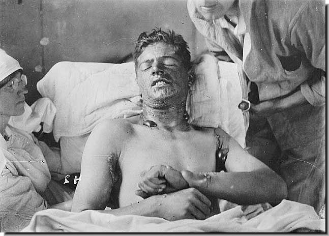 British soldier, victim of gas attack, date uncertain.